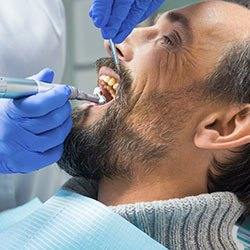 Man receiving professional teeth cleaning
